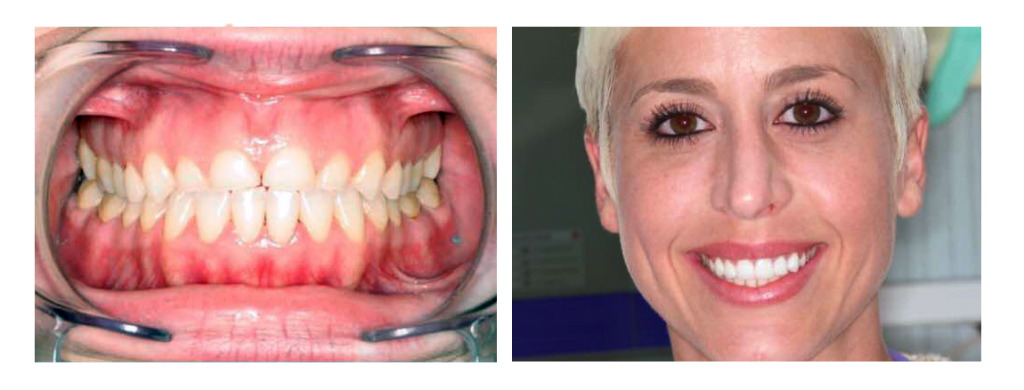 before and after Dr.